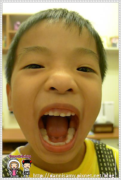♥Dannis'牙套日記♥▋Day1戴牙套生活不便之開端+ COSTCO 入手Waterpik高效能牙齒保健沖牙機